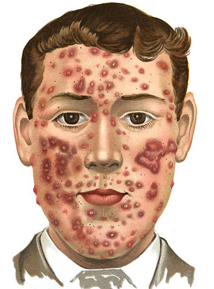 Multiple Studies Link Dairy to Acne | IBS Treatment Center