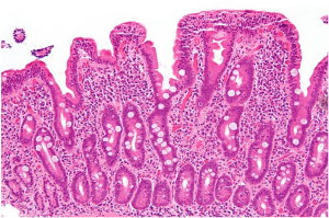 High magnification micrograph of celiac disease. (img: commons.wikimedia)