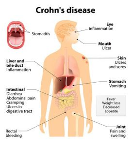 ibs symptoms crohns disease